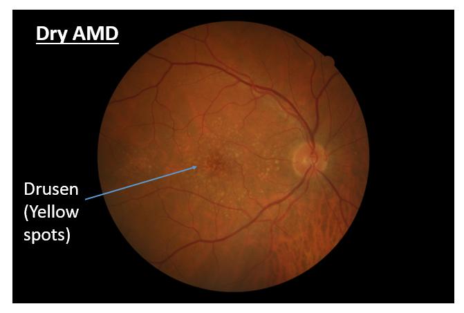 AMD Symptoms | Wet Macular Degeneration | Dry Macular Degeneration ...