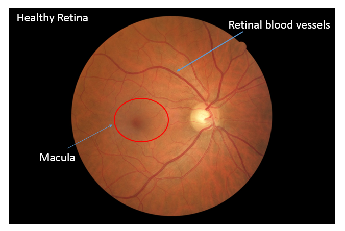 retina eye diagram vein occlusions central retinal vein occlusion branch retinal vein