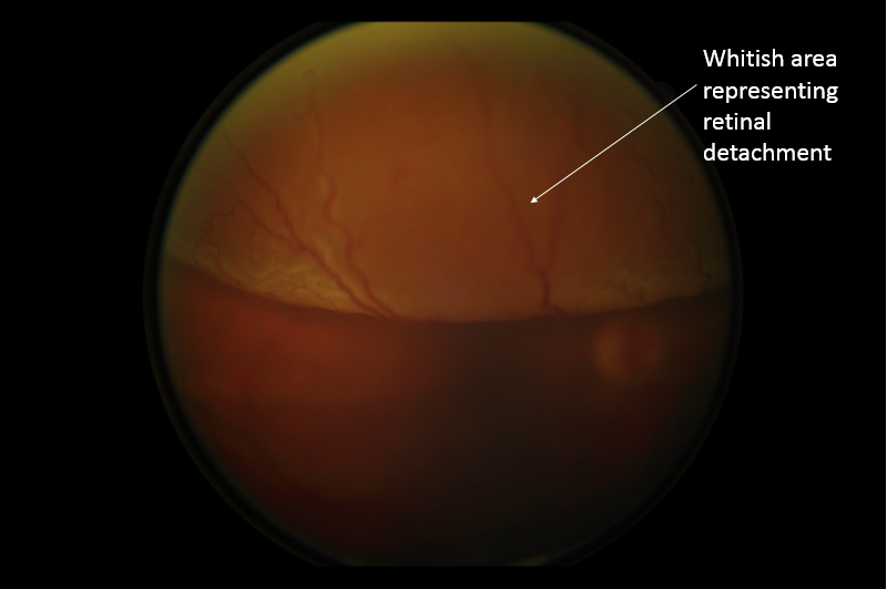 retinal detatchment
