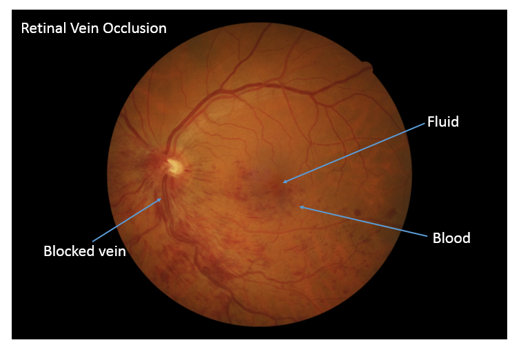 Does Central Retinal Vein Occlusion (CRVO) Affect More ...