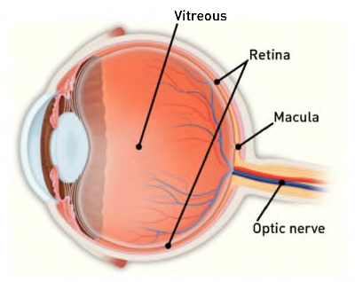 what is a macular hole retinaboston com