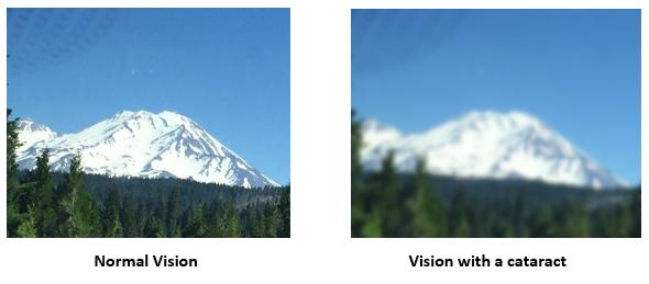 normal vision_catarat vision